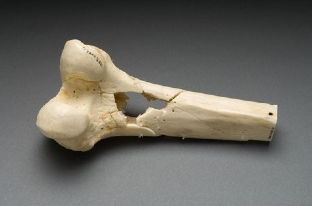 Ученые: Из костей человека создадут строительные материалы