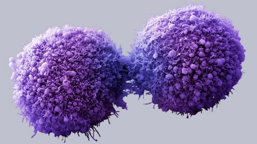 Старение мозга связано с генетическими мутациями — Ученые